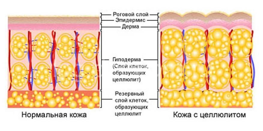 anticellyulitnyj-massag-podolsk