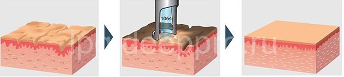 Этапы лазерного удаления растяжек