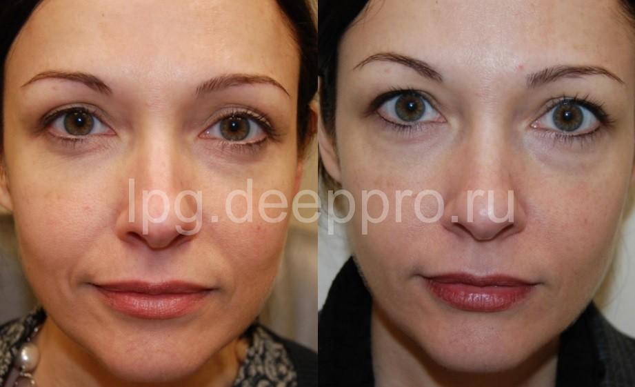 Фото до и после филинга препаратом гиалуроновой кислоты