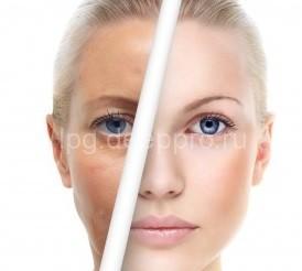 Фото до и после фотоомоложения
