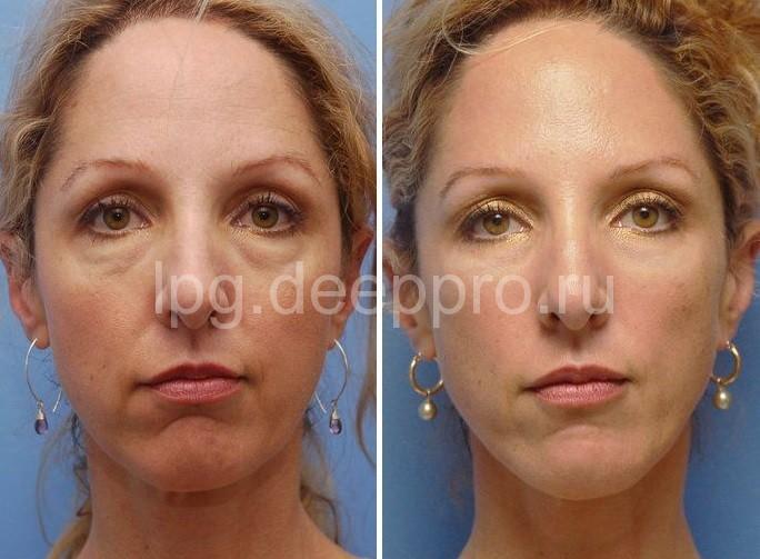 Фото до и после проведенной контурной пластики лица