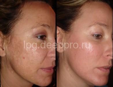 Фото до и после лечения пигментации