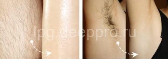 фото до и после процедуры эпиляции