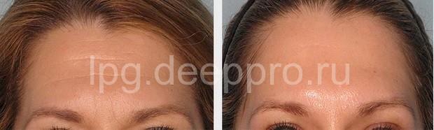 Фото клиентки до и после манипуляции