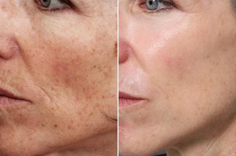 Фото пациентки до и после лазерного термолиза