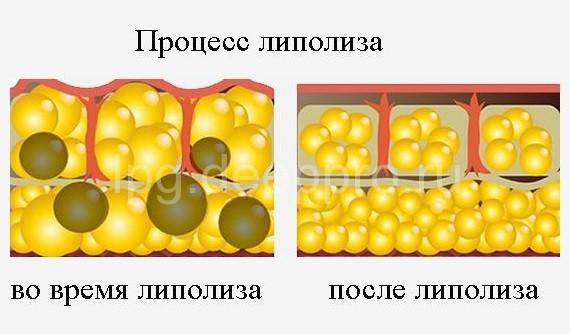 Липотерапия инъекционная