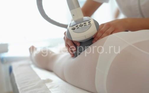 LPG лимфодренажный массаж
