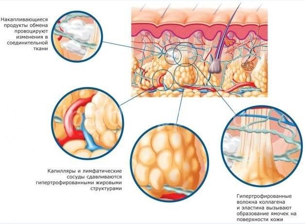Причины формирования целлюлита