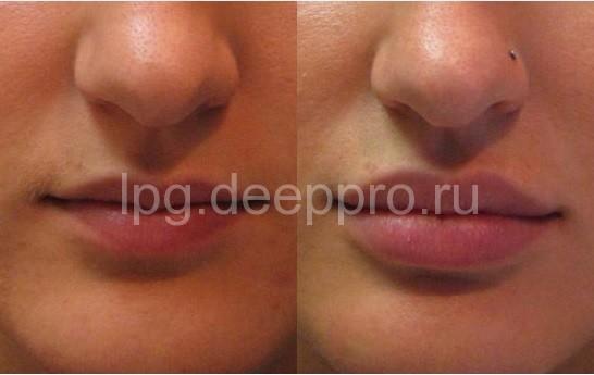 Увеличение губ Подольск