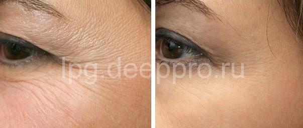 Фото До и после пилинга лазером для омоложения лица