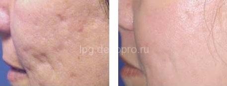 Удаление шрамов Подольск - Клиника Лазерной Косметологии Юнимед+