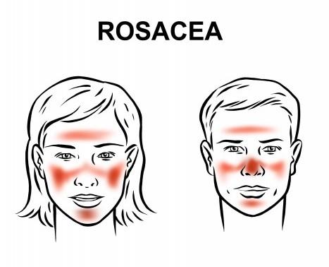 Лечение розацеа Подольск