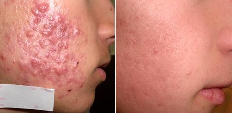 фото до и после терапии акне