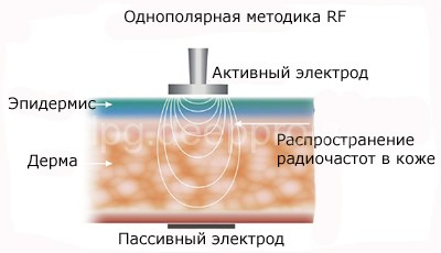 rf-lifting-lica