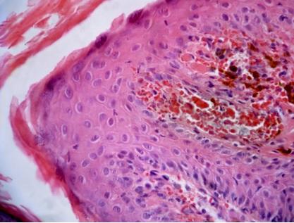Гистология фибропапилломы