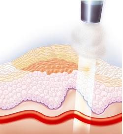 Удаление фброзных папилломатоматозных образований