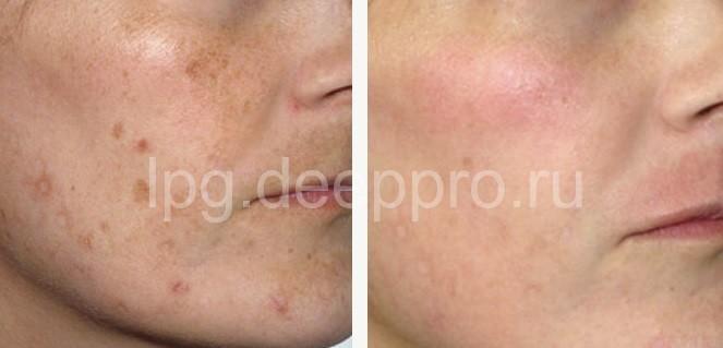 tsentr-lazernoj-kosmetologii-v-podolske