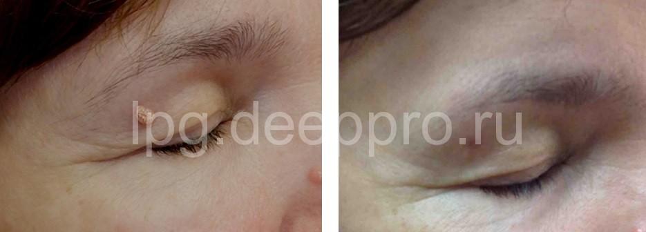 Фото пациентки до и после лазерной резекции ксантоматозной бляшки