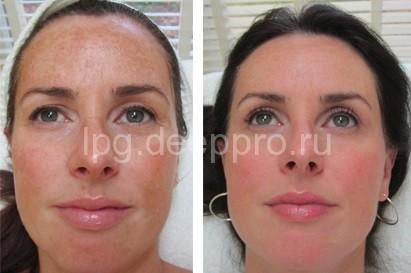 Фото до и после отбеливания лица