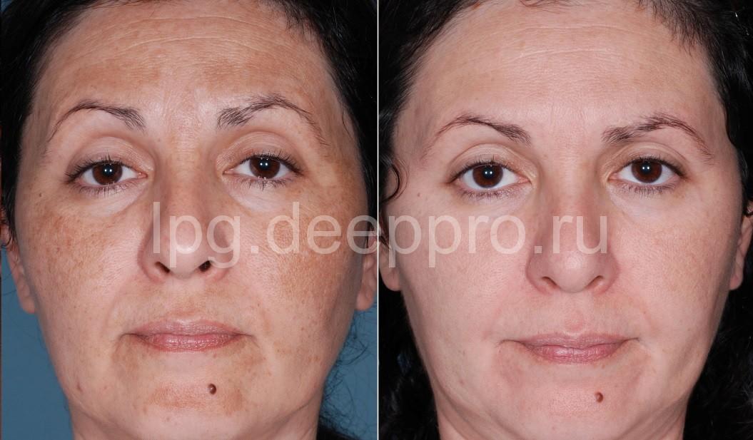 Фото женщины до и после лазерной терапии