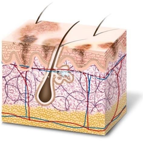 Меланин в эпидермисе схема