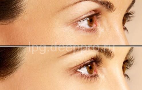 Фото до и после применения латиссе