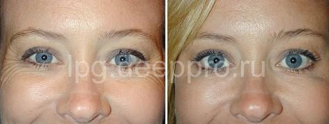 Фото до и после манипуляции