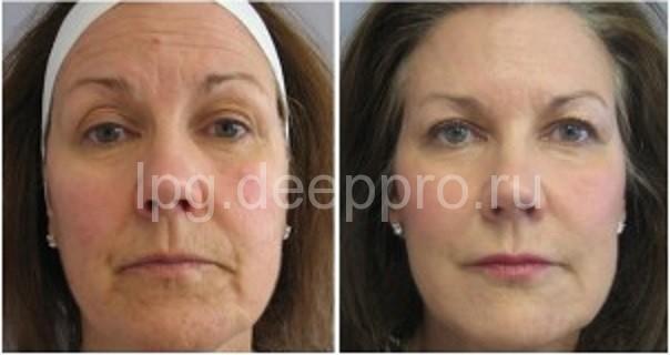 Фото пациентки до и после процедур красоты
