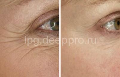 Пациент до и после процедуры